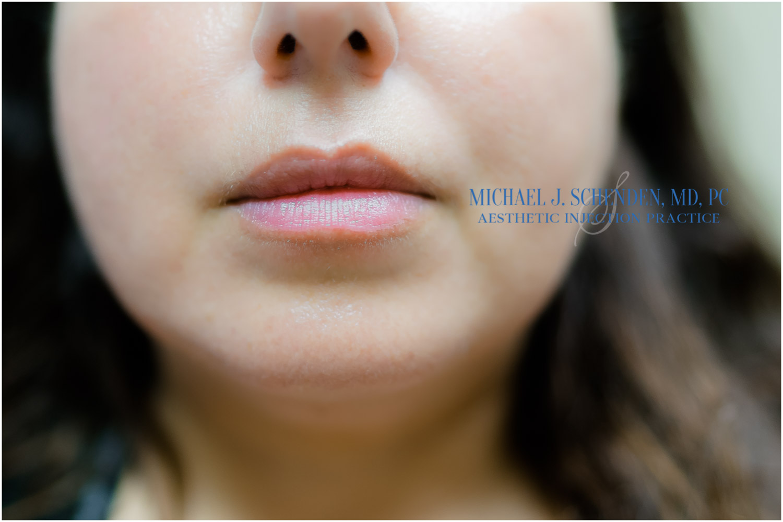 best lip fillers near me | Dr  Michael J  Schenden